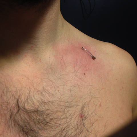 <em>Safety Pin Removal</em>, archival photo of piercing<br>© Brandon Kyle Greene 2016